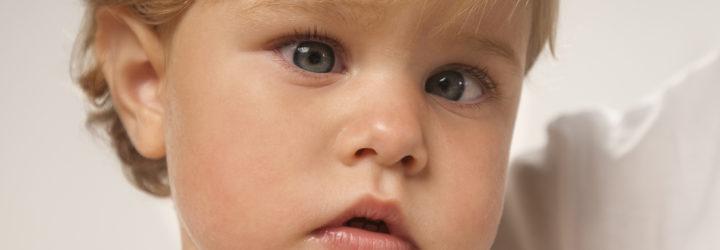 Косоглазый ребенок