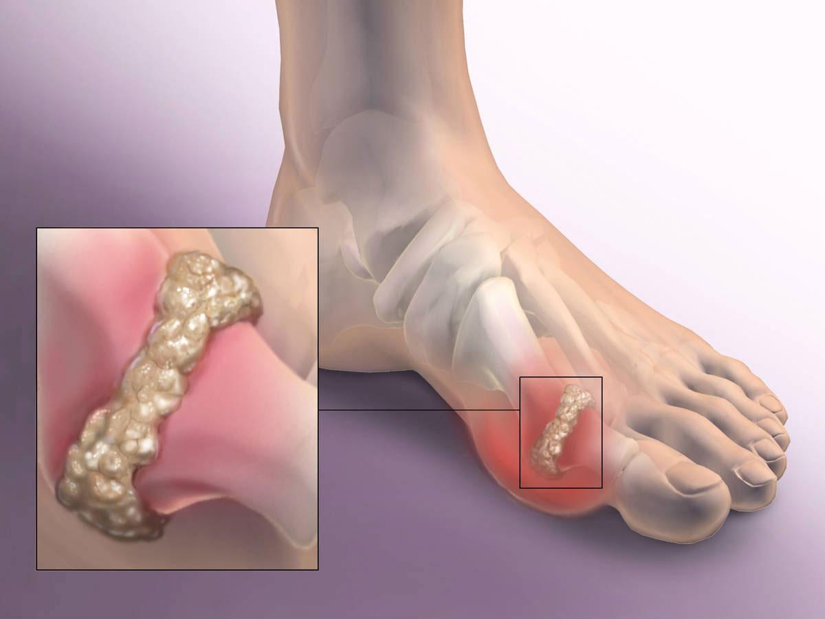 Косточка на большом пальце ноги, причины, по которым кость ...