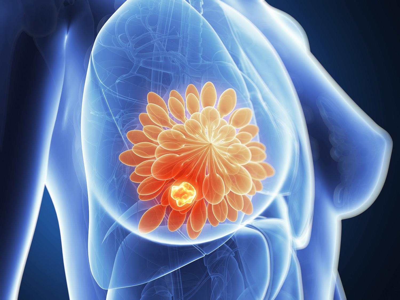 Рак молочной железы: фото, причины, симптомы, признаки рака молочной железы