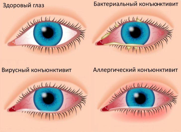 Конъюнктивит и здоровые глаза