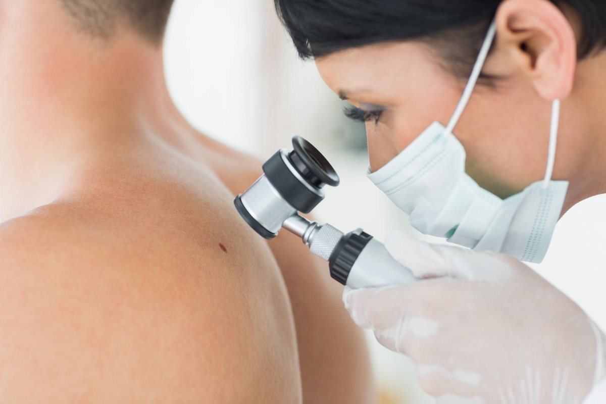 Меланома кожи: фото, симптомы, диагностика, лечение