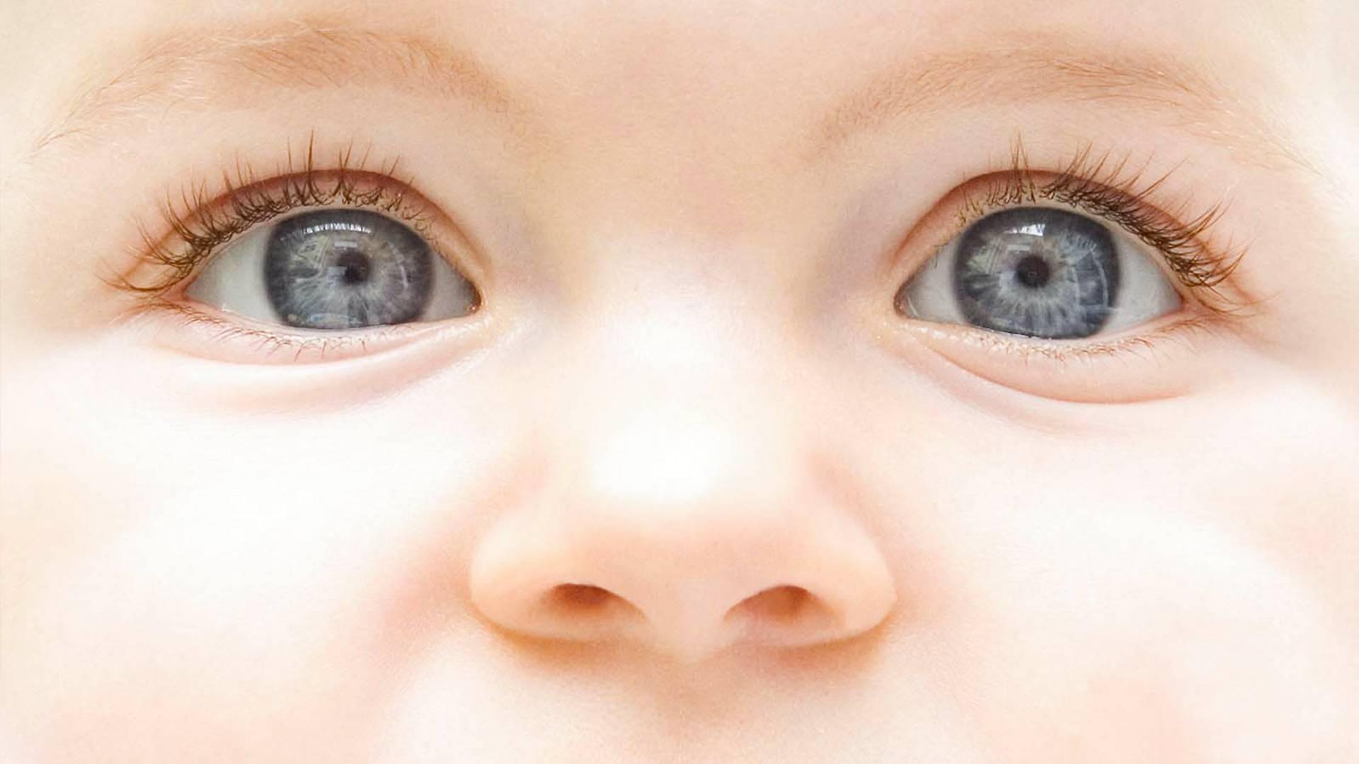 Конъюнктивит у детей и взрослых: симптомы и лечение