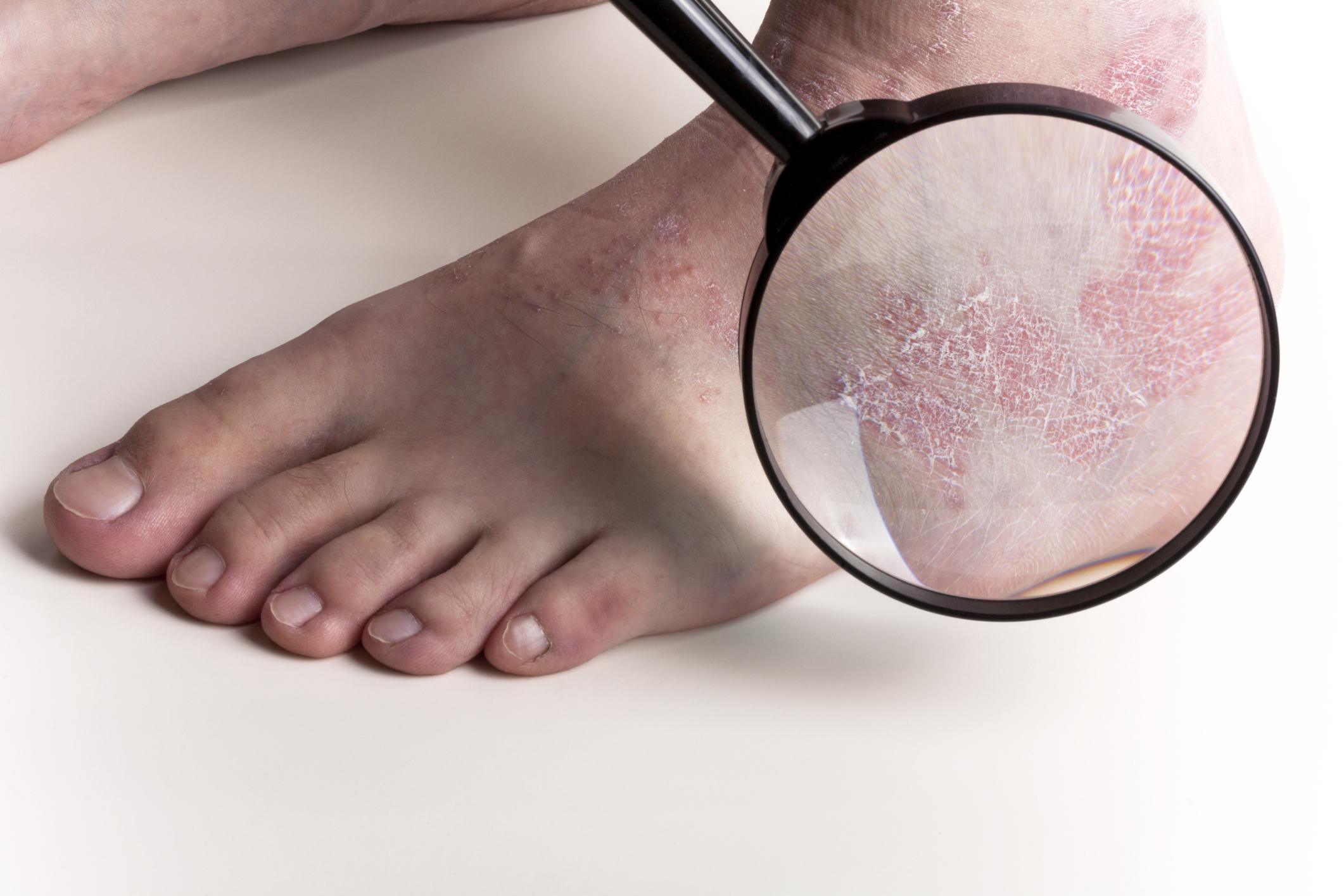 Стригущий лишай у человека (трихофития): фото, симптомы, лечение