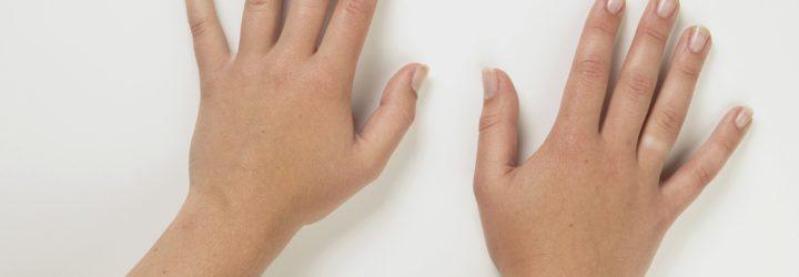 Здоровые руки