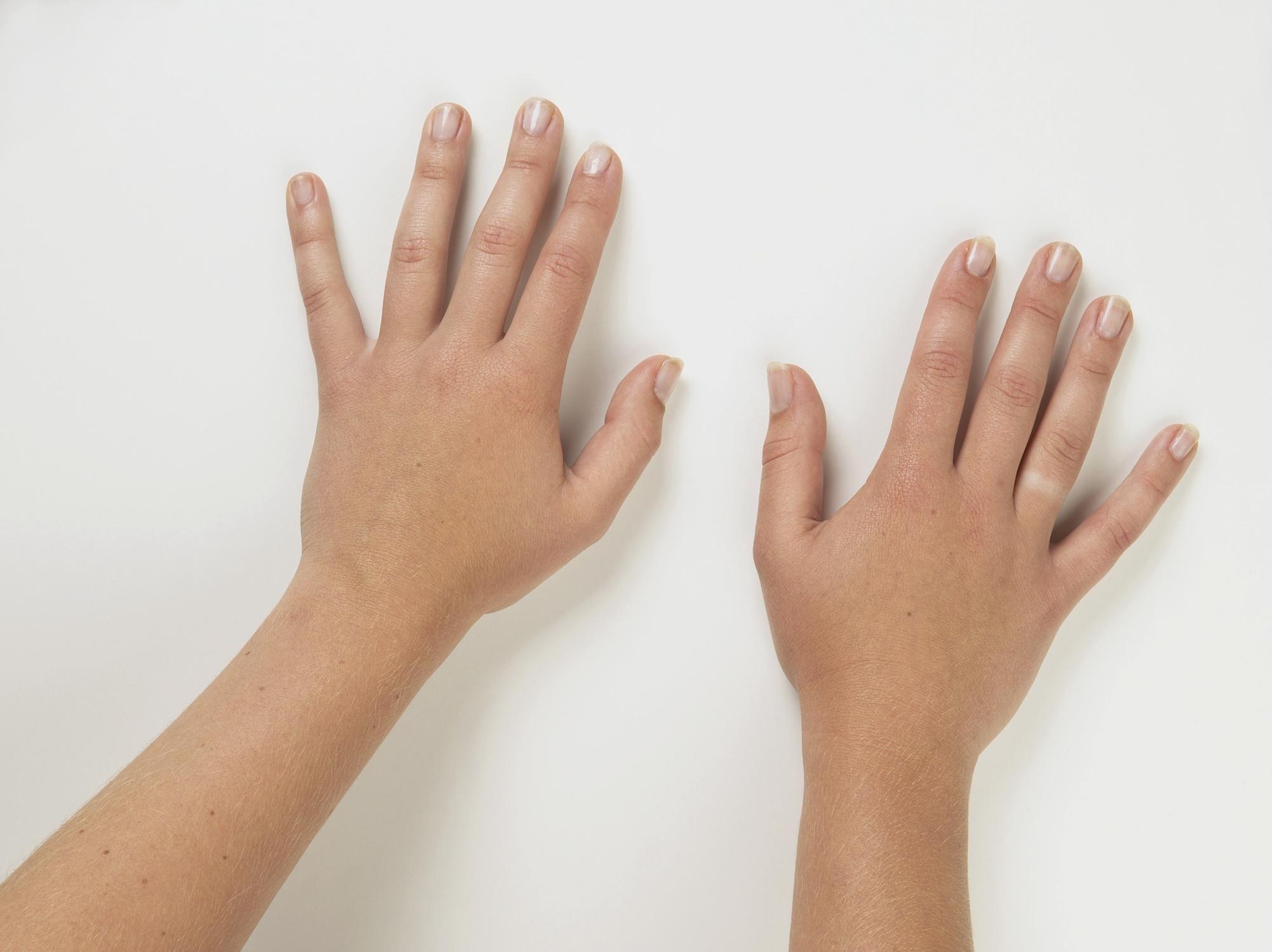 аллергия крапивница лечение препараты