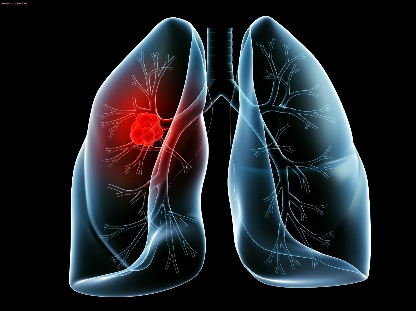 Рак легких: фото, причины, симптомы, признаки рака легких