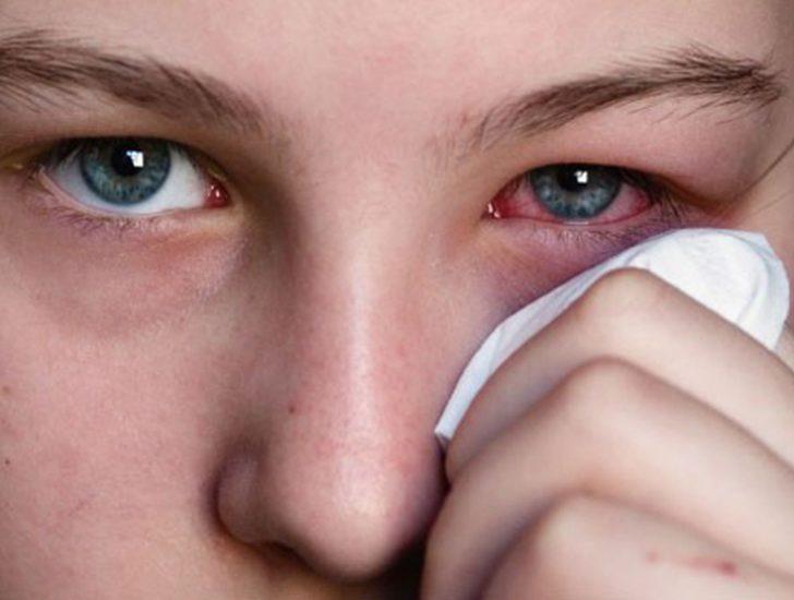 Конъюнктивит симптомы у взрослых лечение в домашних условиях
