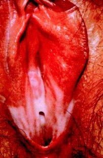 Молочница у женщин фото