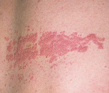 Опоясывающий лишай Опоясывающий лишай - острое инфекционное заболевание.