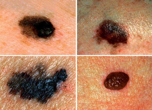 Рак кожи фото