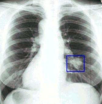 Симптомы признаки рака легких