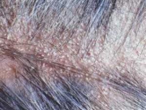 Себорейный дерматит волосистой части головы фото