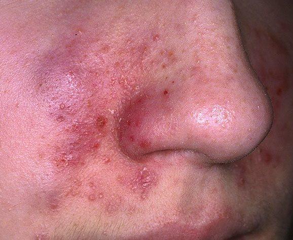 Себорейный дерматит на лице: лечение грибок.