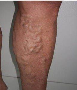Можно ли парить ноги при варикозе