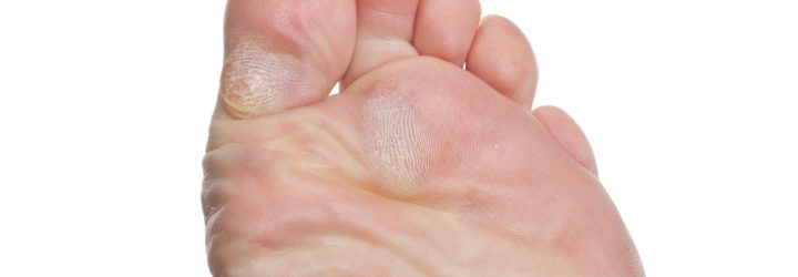 Сухие мозоли на пальцах ног
