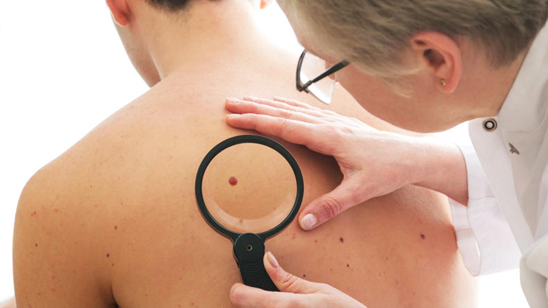 Папилломы и бородавки лечение