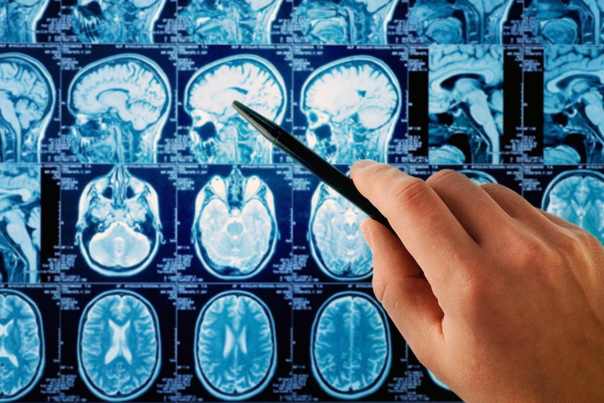 Наружная заместительная гидроцефалия головного мозга: симптомы, лечение