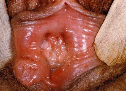 сперма на вагине фото