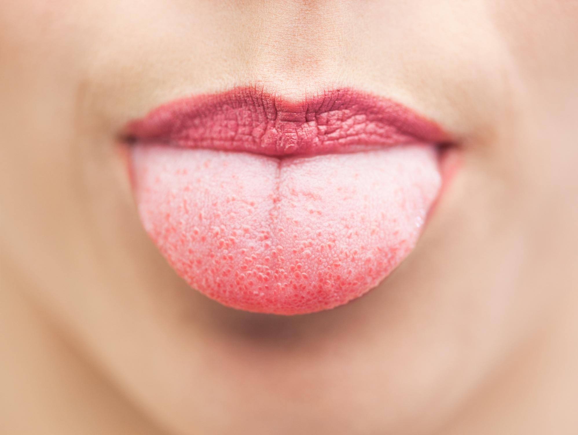Почему немеет язык и что делать