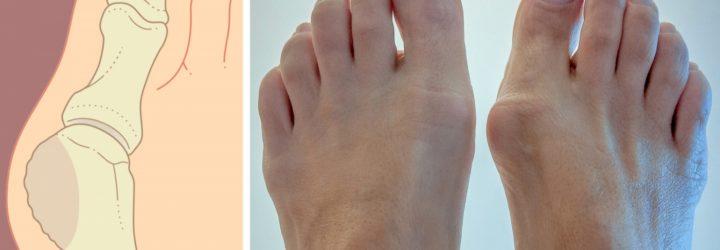 Болит косточка на большом пальце ноги причины лечение