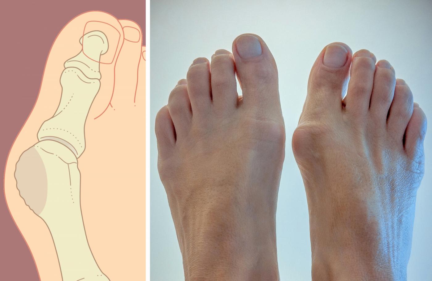Косточка (шишка) на большом пальце ноги причины и лечение
