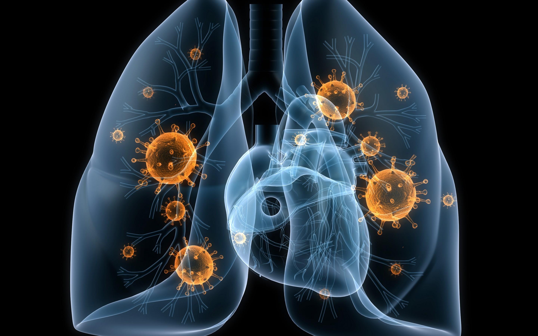 Туберкулез легких: фото, симптомы, признаки, диагностика туберкулеза