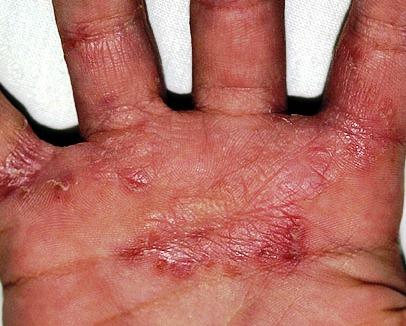 Индийский лук лечение грибка ногтей на ногах