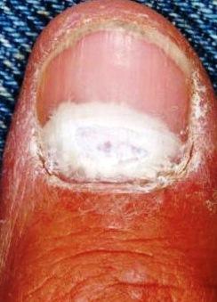Доступные средства для лечения грибка ногтей на ногах