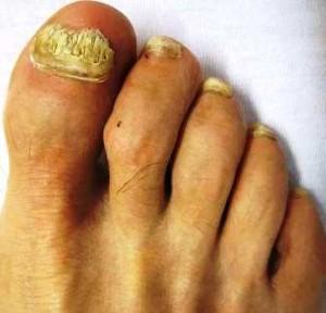 Грибок на ступнях ног лекарства