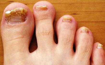 симптомы грибка ногтя