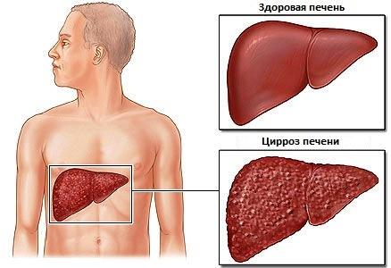 Симптомы и стадии цирроза печени