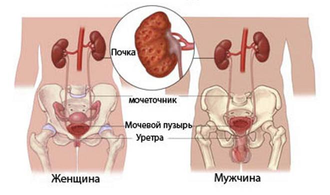 Гастрит симптомы лечение боль в желудке