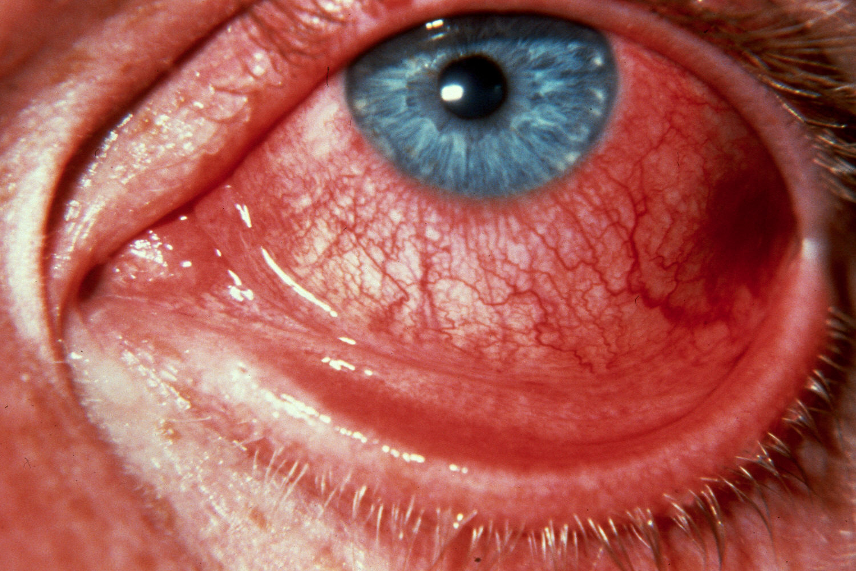 симптомы заражения организма паразитами
