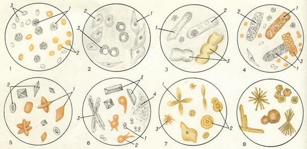 наличие паразитов в организме симптомы
