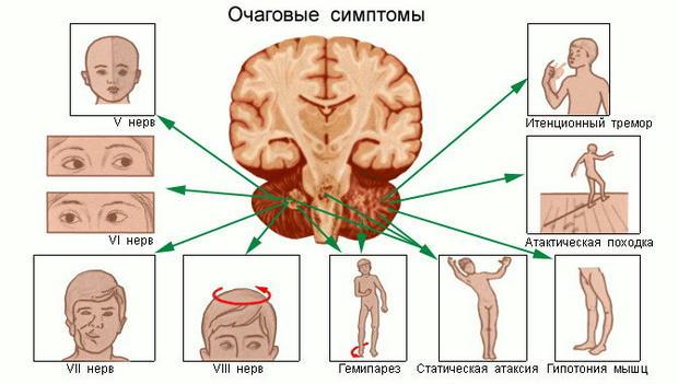 причины. головокружения