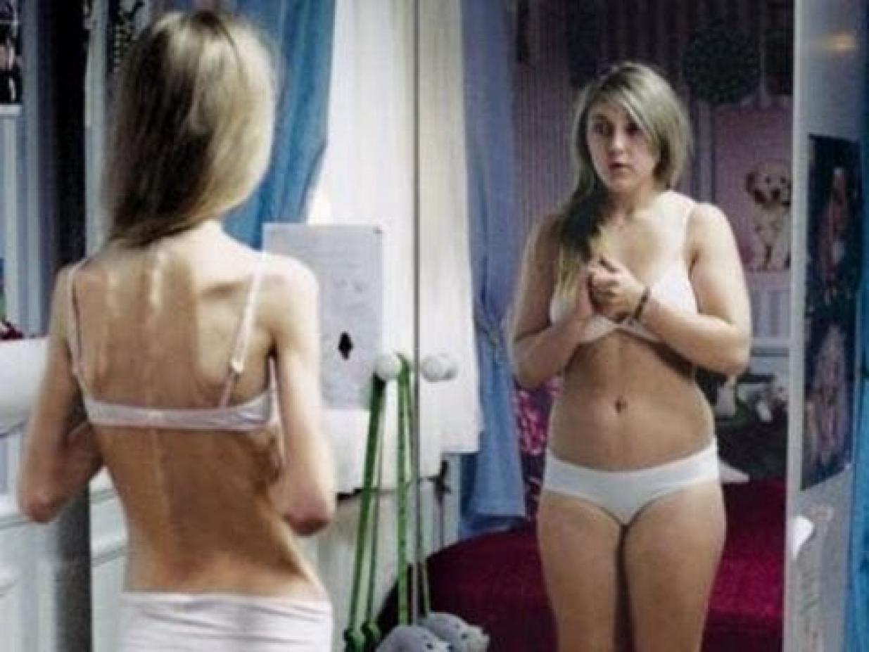 Смотреть порно очеть худых девочек анурексичек 8 фотография