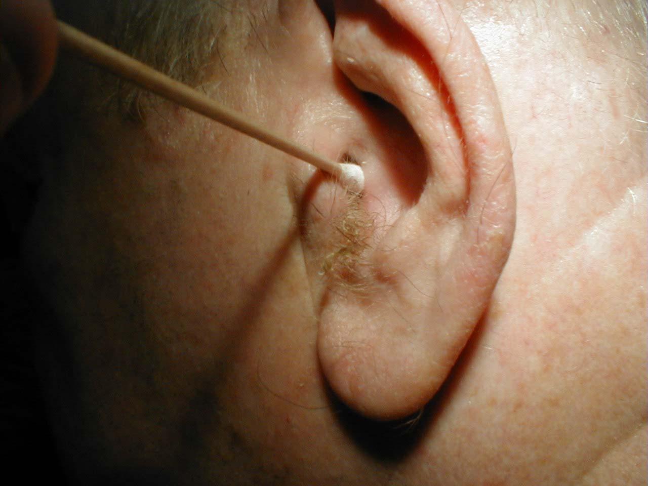Как лечить уши если продуло в домашних условиях 192