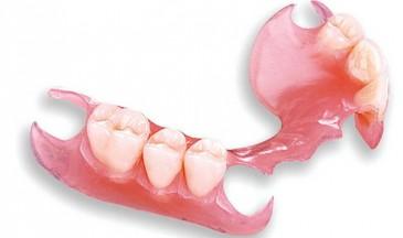 бюгельный протез нижней челюсти