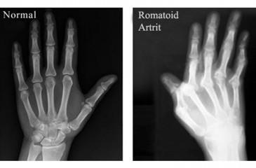деформация суставов на рентгене