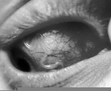 дирофиляриоз паразит в глазу
