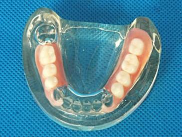 нейлонвый зубной протез
