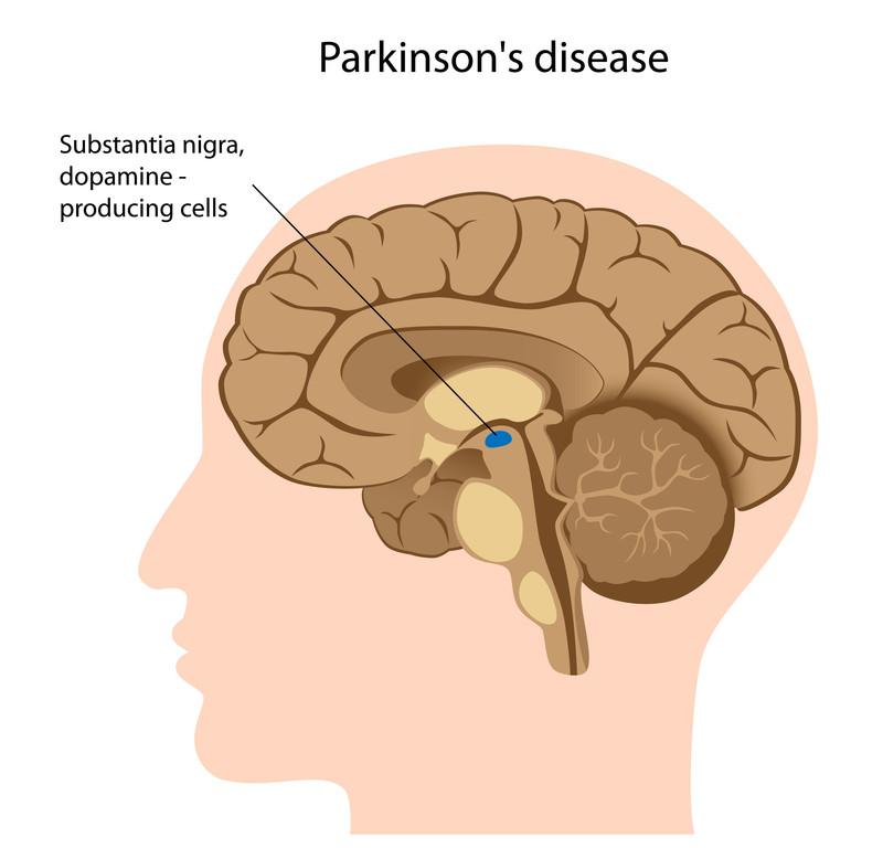 рассположение черной субстанции в головном мозге
