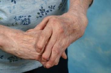 руки с артритом