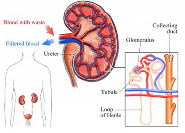 an analysis of the causes and dangers of glomerulonephritis diseases