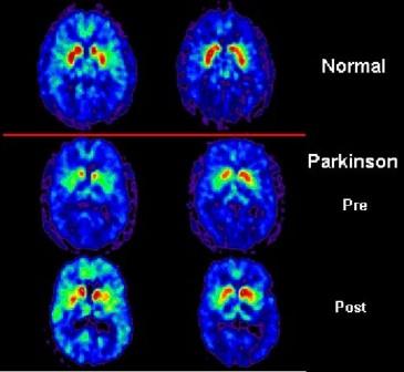 томограмма мозга здорового человека и больного