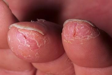 экзема на кончиках пальцев