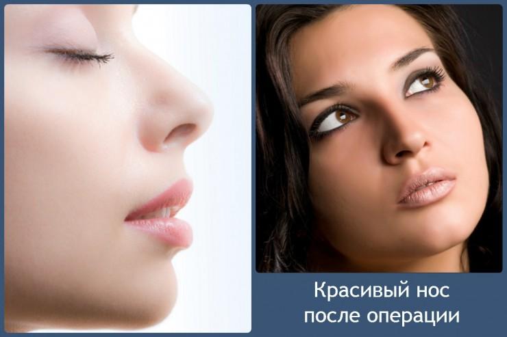 красивый нос после операции