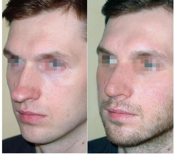 мужчина сделал пластику носа