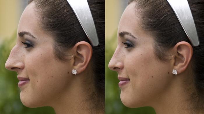 пластика носа с горбинкой