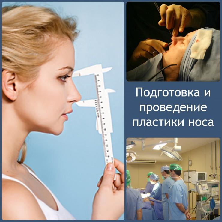 подготовка и проведение пластики носа
